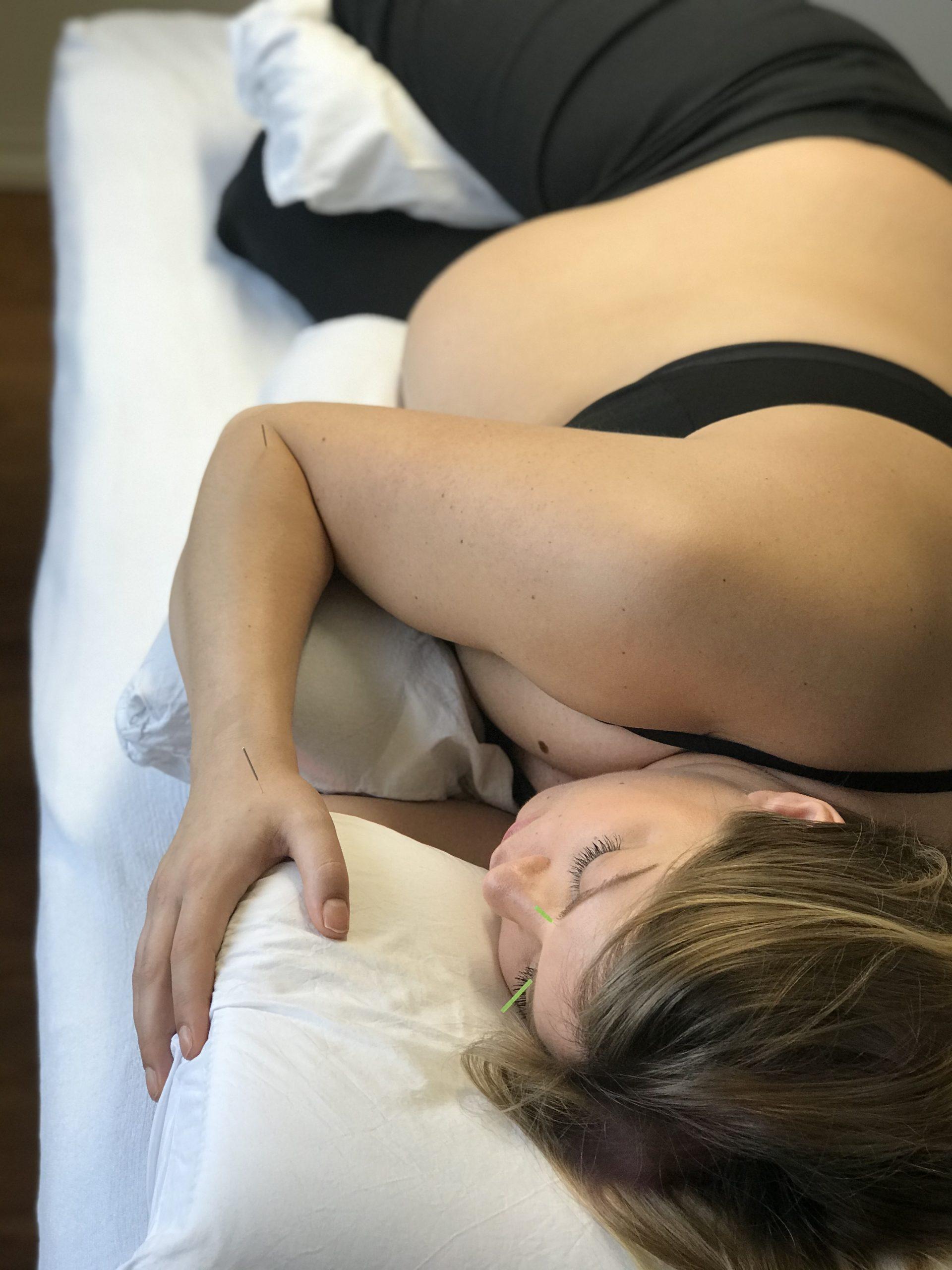 gravid akupunktur